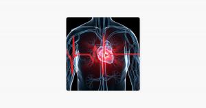 Heart Study